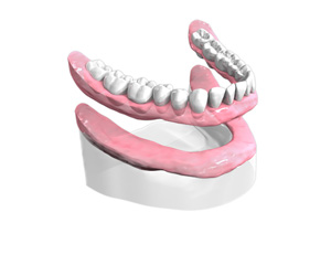 appareil-resine-complet - Dentiste Paris