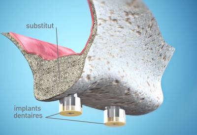 Greffe-osseuse-pre-implantaire - Dentiste Paris