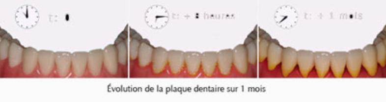 Hygiene dentaire - Dentiste Paris