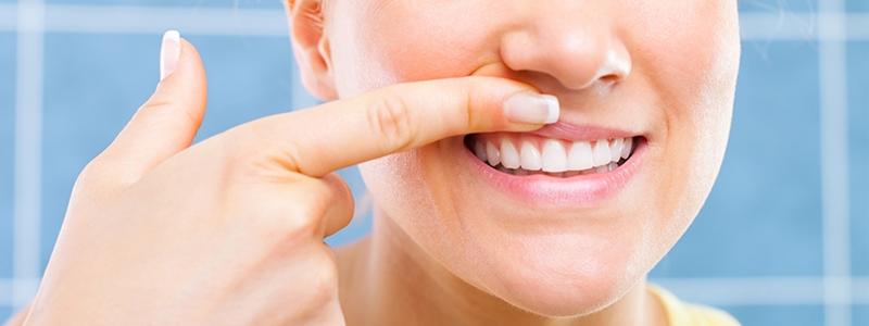 Parodontiste Paris 13 - Sourire - Dent qui bouge