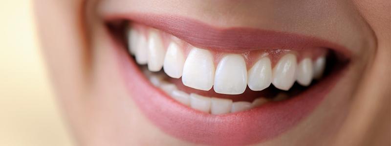 Parodontiste Paris 13 - Sourire