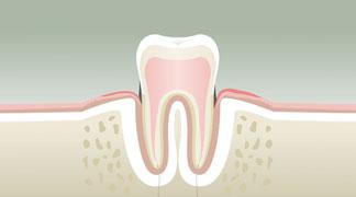 Parodontologie Stade 2 - Dentiste Paris