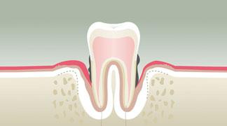 Parodontologie Stade 4 - Dentiste Paris