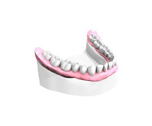 Sourire retrouve - Dentiste Paris